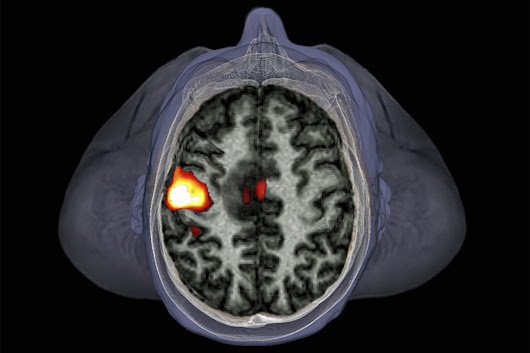 Thousands of fMRI brain studies in doubt due to software flaws