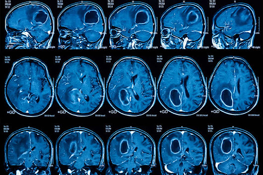 Brain Cancer Vaccine Effective in Some Patients - Neuroscience News
