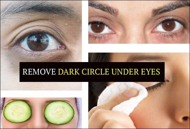 Get Rid of Dark Circles Under Eyes - 10 Powerful Remedies