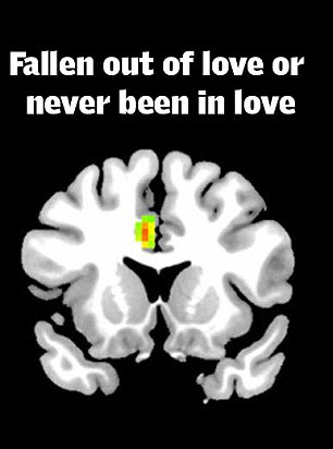 Scientists believe they have isolated the part of the brain the most active when someone is in love