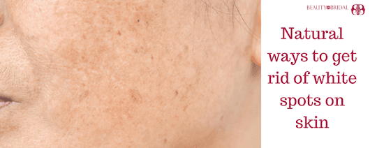 White spots on skin treatment and vitiligo causes and vitiligo symptoms