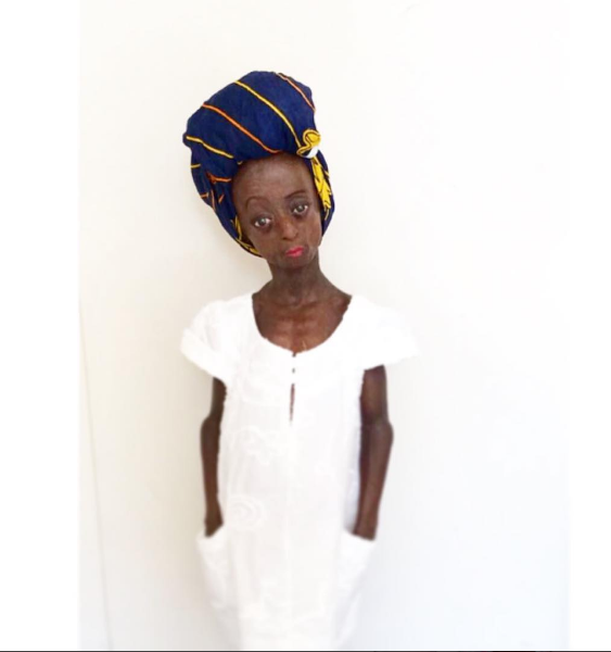 BEAUTIFUL ONTLAMETSE PHALATSE WAS BORN WITH A RARE AGE-ACCELERATING DISORDER BUT HER POSITIVITY IS CONTAGIOUS