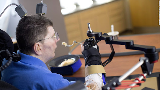 Paralyzed man regains use of hand