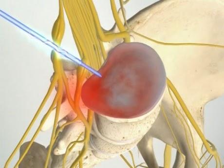 Головная боль при остеохондрозе шейного отдела форум