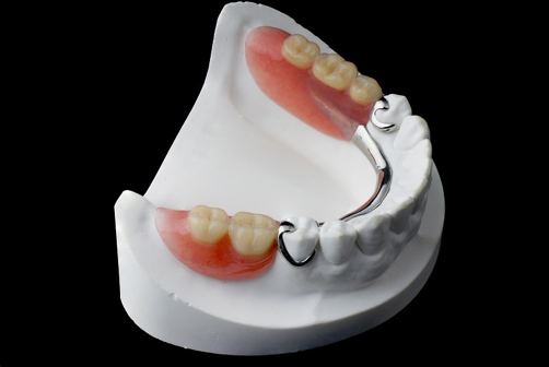 What You Need to Know About Removable Partial Dentures