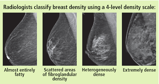 My Mammography Report Says I Have Dense Breasts. Should I Be Worried?