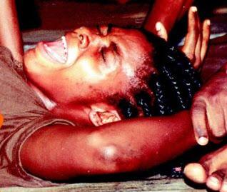 Τρία εκατ. κορίτσια υφίστανται ετησίως, ακρωτηριασμό γεννητικών οργάνων