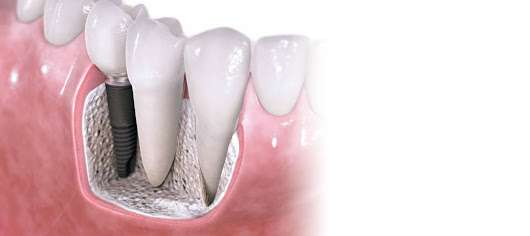 Do You Need Dental Implants? - Grand Smiles Dental