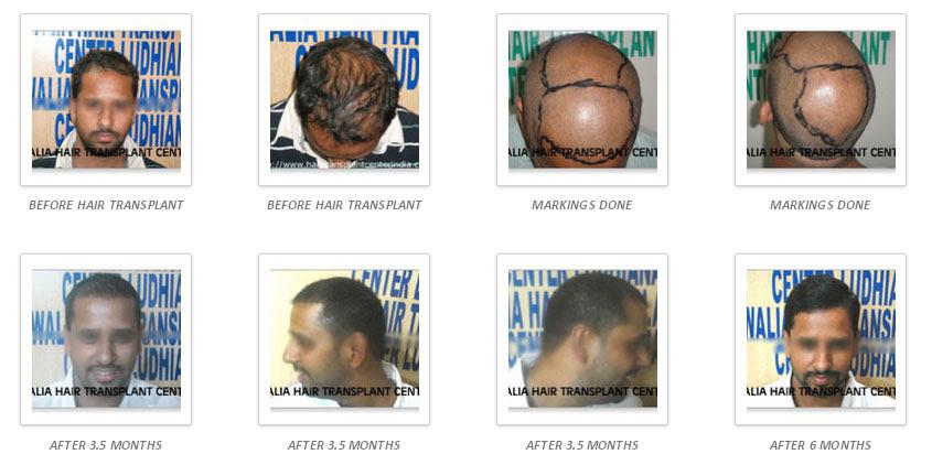 hair-gallery-img4
