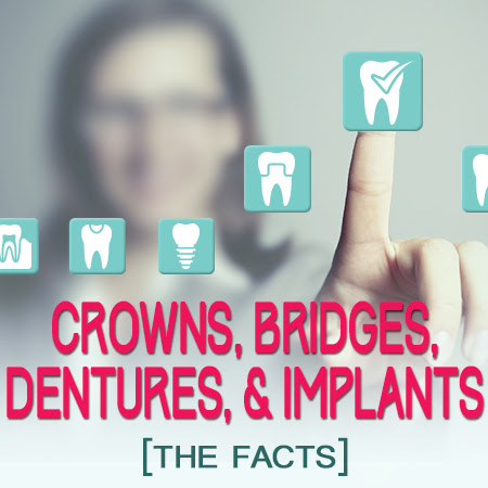 Crowns, Bridges, Dentures, and Implants: The Facts - Veranda Dentistry