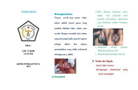 leaflet tumor service
