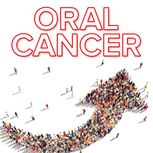 Oral Cancer in Men Caused by Sexually Transmitted Virus Is on the Rise » Dentistry & Oral Health Blog