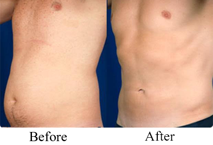 i-Lipo Revolutionary non surgical fat loss Treatment in Westbury, Long Island, Newyork