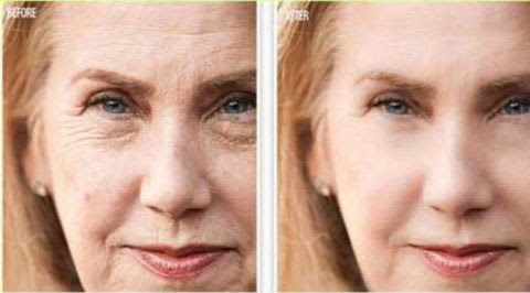 How To Make Your Skin Look Ten Years Younger | Skin Renews, anti-aging and skin whitening products