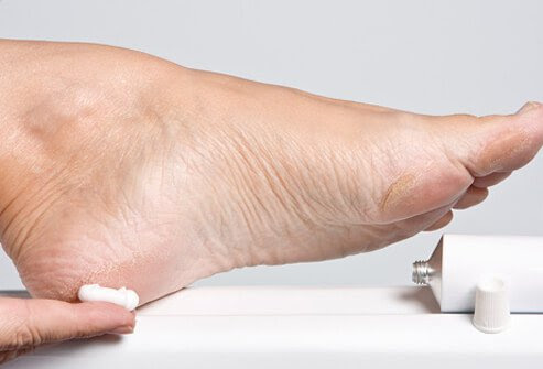 Wash your feet every day and keep them nice and moisturized by applying lotion.