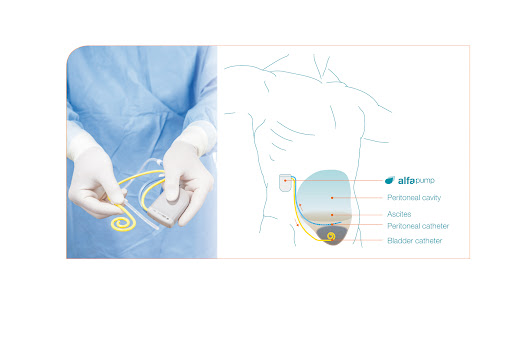 High-tech pump removes fluid from the abdomen - Aarhus Universitetshospital - English