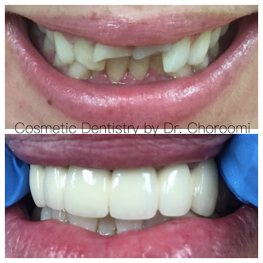 Cosmetic Reconstruction – Agoura Dental in Agoura Hills, CA