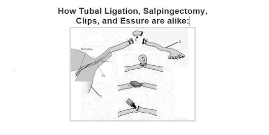 How Tubal Ligation, Salpingectomy,  Clips and Essure are alike: