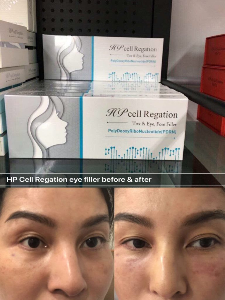 hpcell regation eye filler for dark circle saggy under eye ...
