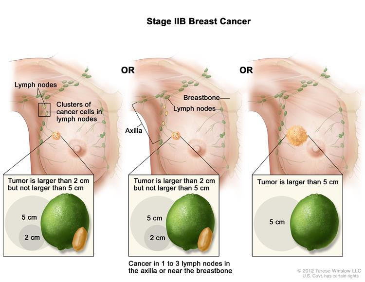 Stage IIB breast cancer. The drawing on the left shows the tumor is larger than 2 cm but not larger than 5 cm and small clusters of cancer cells are in the lymph nodes. The drawing in the middle shows the tumor is larger than 2 cm but not larger than 5 cm and cancer is in 3 axillary lymph nodes. The drawing on the right shows the tumor is larger than 5 cm but has not spread to the lymph nodes.