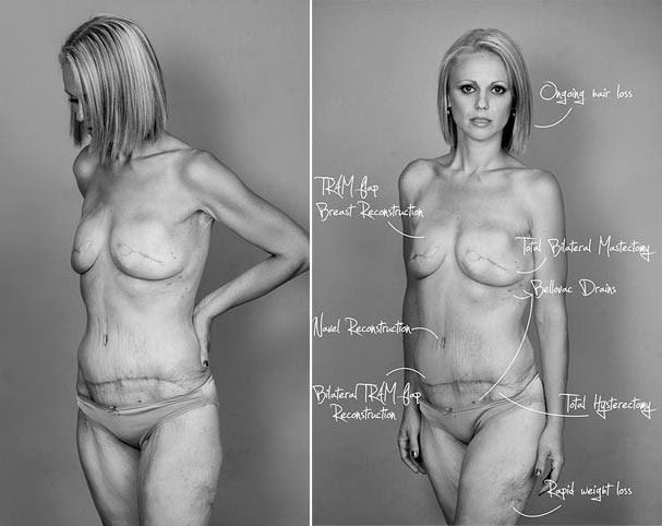 O corpo de Beth após as cirurgias. As setas apontam onde e qual procedimento foi feito (Foto: Nadia Masot)