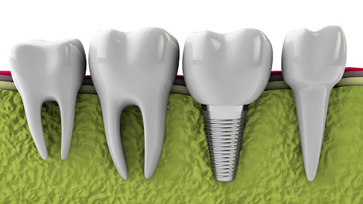 Interested in Dental Implants? Here's Everything You Need to Know