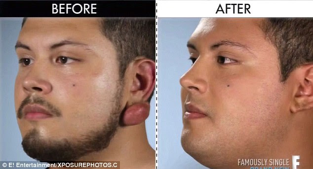 E Series Botched Shows Man Having Keloid Lumps Removed From His Ears