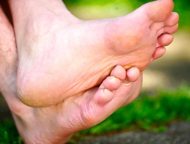 Close dos pés de Ceni (Foto: Marcos Ribolli / Globoesporte.com)