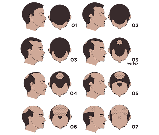 Norwood Scale - Male Pattern Baldness Scale