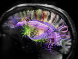 cerveau-irmd.jpg