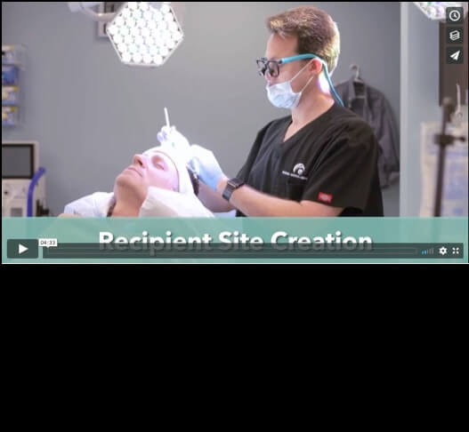 VIDEO: FUE Hair Transplant with ARTAS, NeoGraft, PRP · Bauman Medical