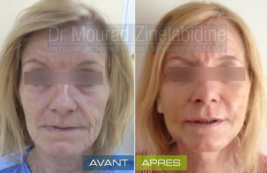 Lifting visage Tunisie : Lifting cervico facial