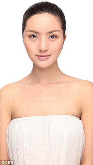 Liu Yisong, a 26-year-old dance teacher, after the plastic surgery
