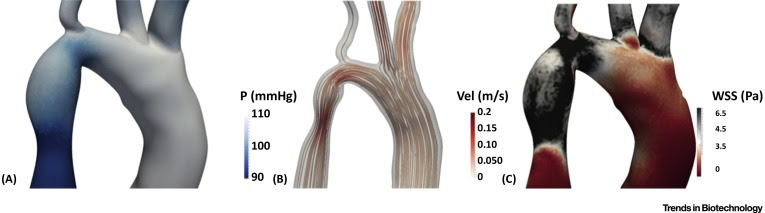 putational Fluid Dynamics and Additive Manufacturing to Diagnose