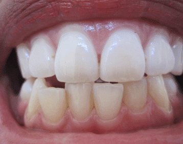White Spots On Gums Bumps Pictures Painful After Using Hydrogen