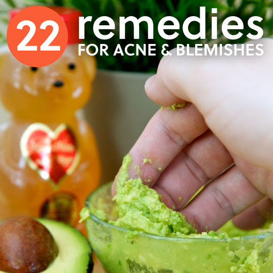 22 Acne Remedies- to make your skin glow.
