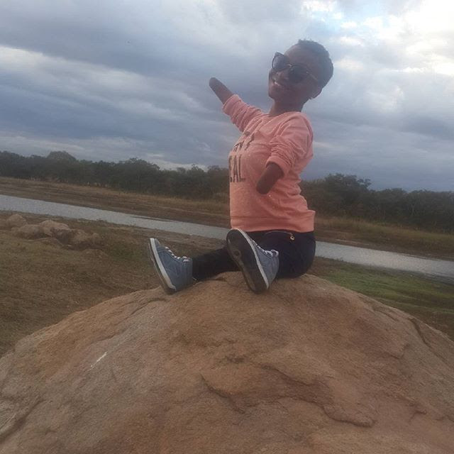 eet 24-Year-Old Zimbabwean Lady, Born With No Arms & Knees, But Runs A Blog