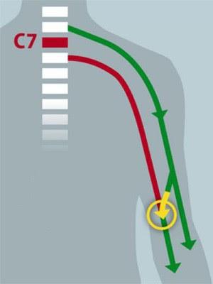 Ilustração explica a lógica da transferência de nervos (Foto: Eric Young/Divulgação)