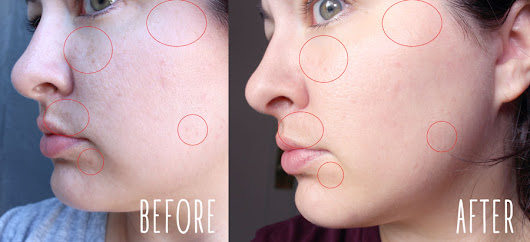 I Tried It! Clear + Brilliant Laser Treatment | My Beauty Bunny