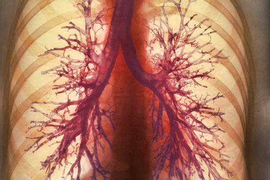 Artificial lungs in a backpack may free people with lung failure