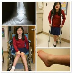 Sophia's Ankle Injury