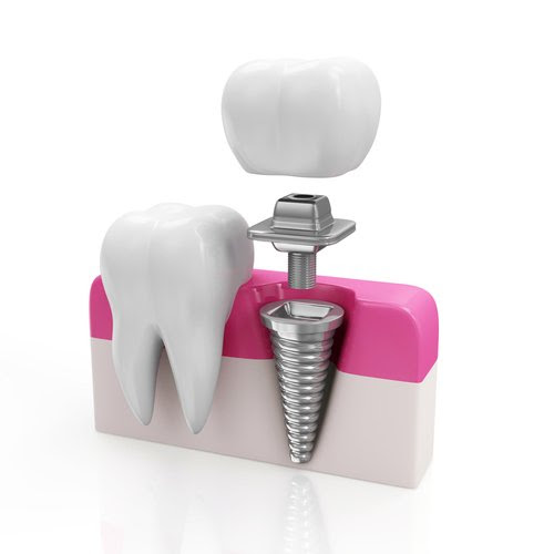 Dental Implants: High Tech Teeth
