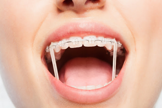 How Important Is it to Wear Your Orthodontic Rubber Bands? - Belmar Orthodontics