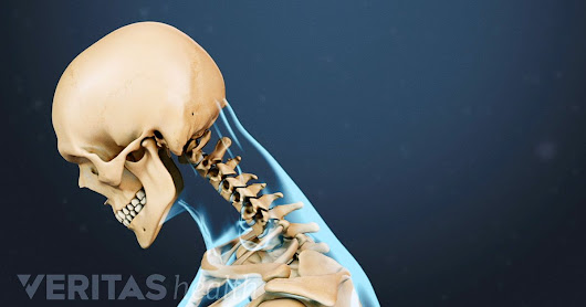 Chiropractic Treatments for Whiplash