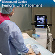 Ultrasound-Guided Femoral Line Placement: Procedure Module – SonoSim