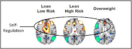 Brain's self-regulation in teens at risk for obesity
