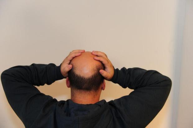 Micropigmentação ajuda a disfarçar a calvície Emerson Souza/Agencia RBS
