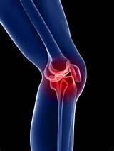 Symptoms Pain Joints Images