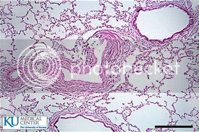 anatomyforme: Lower Respiratory Structures Histology
