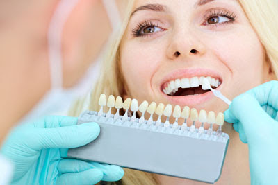 A Palm Desert Dental Office Discusses Dental Veneers and What They Can Do For You